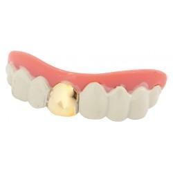 Dentier dent en or